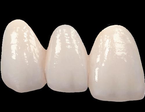 chuyende1-4 Phục hình răng và vật liệu phục hình