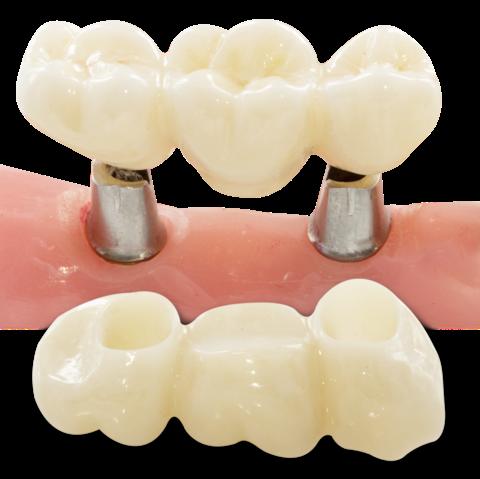 chuyende5- implant